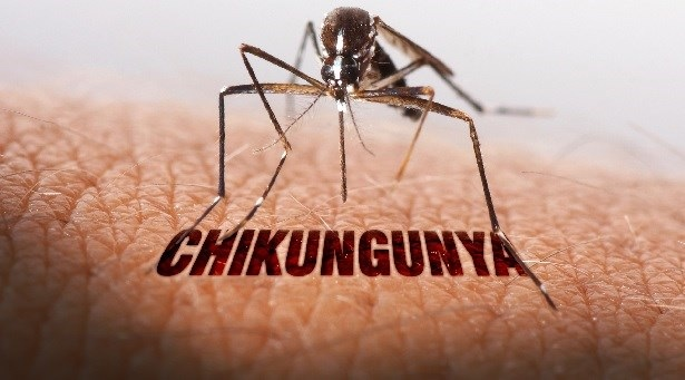 Homeopathy offers relief from Chikunguniya
